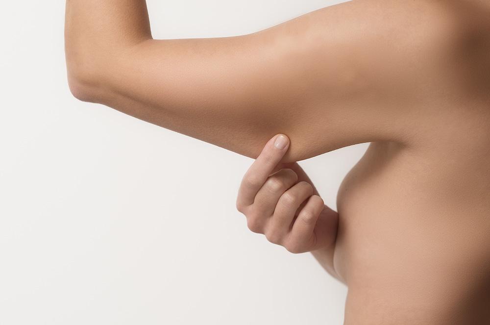 Lifting de braço